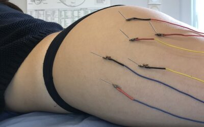 Λιπόλυση με Ηλεκτροβελονισμό